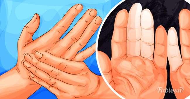 La maladie de Raynaud : quand les mains et les pieds s ...