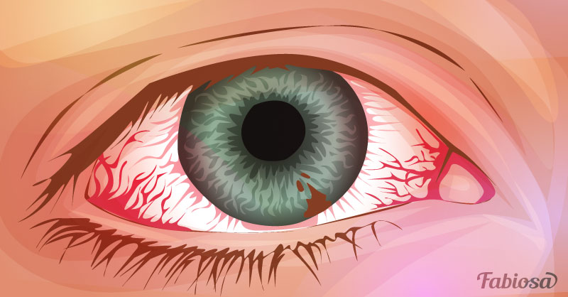 6 Warning Signs Of Eye Melanoma: Who Is At Risk Of Getting