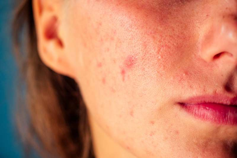 Man Secretly Replaced His Girlfriend's Soy Milk With Regular One To See If Her Acne Would Get Worse