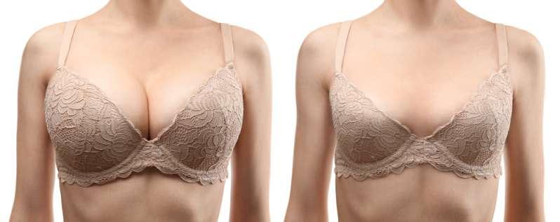 Sechs Promi-Damen, die bedächtig eine Brustverkleinerung eingingen, doch mehr als zufrieden mit dem Endergebnis waren