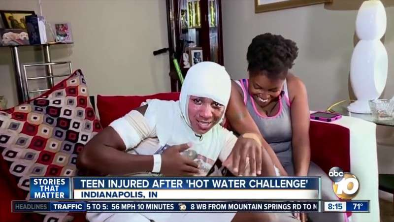 Hot Water Challenge: A Life-Threatening Teenage Trend That