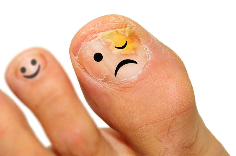 Get Rid Of Toenail Fungus Fast - Top 7 Truly Amazing Home Remedies ...