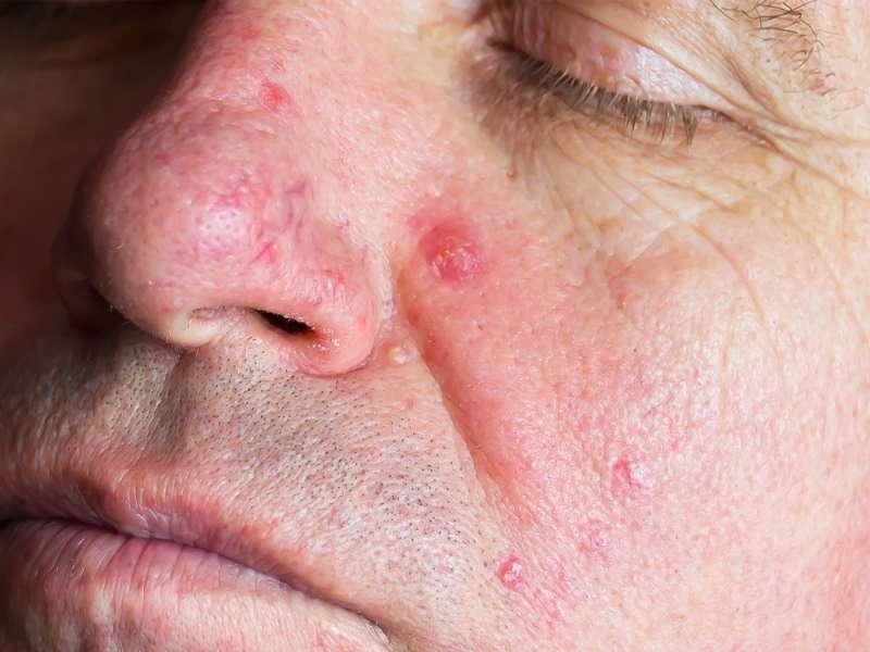 O minúsculos ácaros que vivem e se reproduzem em seu rosto e cuja quantidade aumenta a cada ano