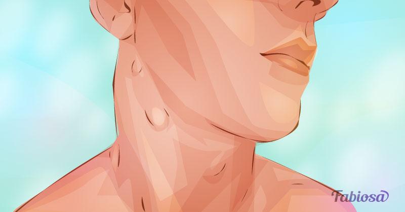 cancer ganglions hodgkin