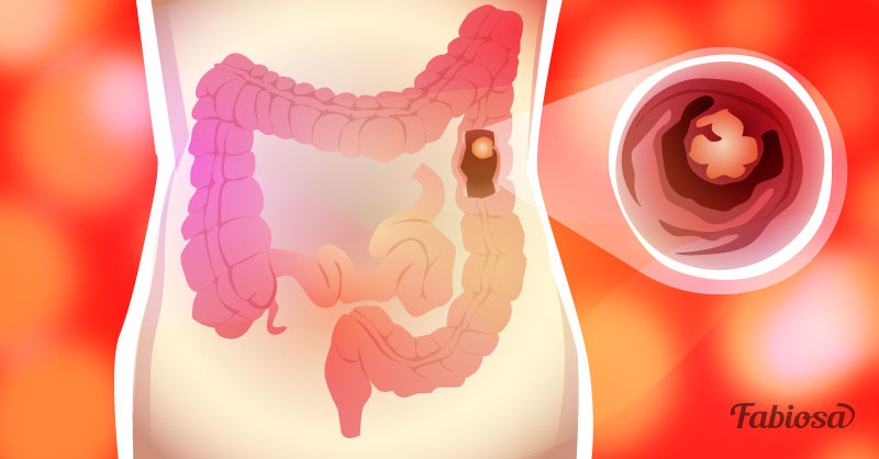 Asportazione polipi colon dieta