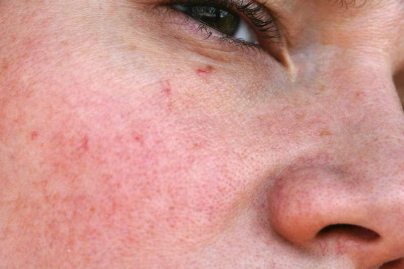 5 técnicas para eliminar las molestas venas varicosas y arañas vasculares del cuerpo y el rostro