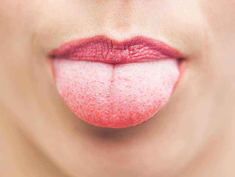 When Do Teeth Marks On The Tongue Signal Health Problems?