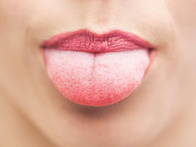 Marques des dents sur la langue : quand faut-il s'inquiéter ?