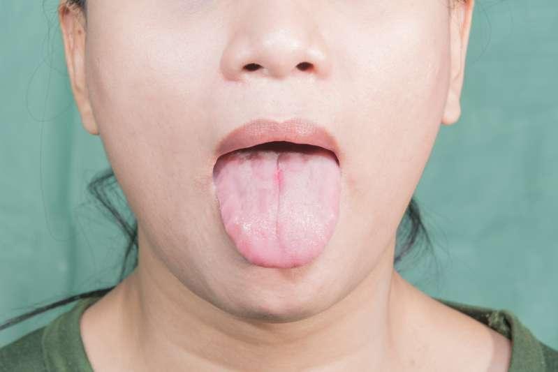 Marques des dents sur la langue : quand faut-il s'inquiéter ?Geographic tongue disease in woman
