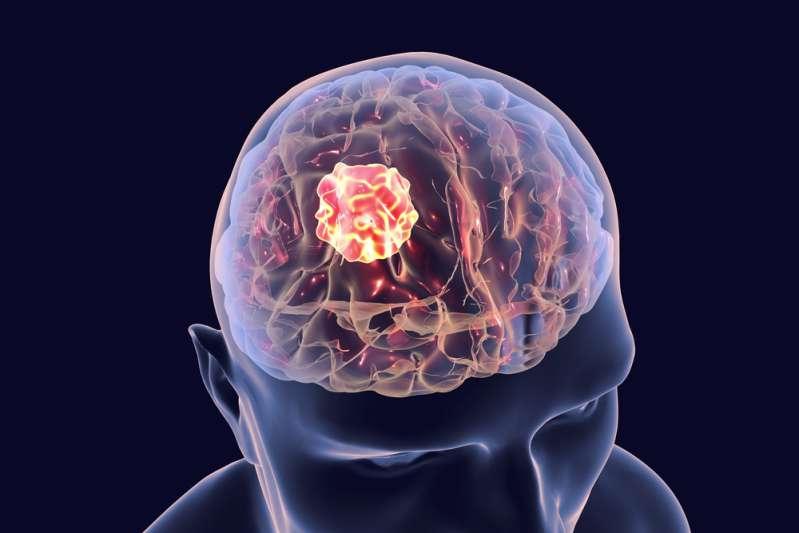 Узнайте в лицо 8 видов рака, которые невозможно определить на ранних сроках