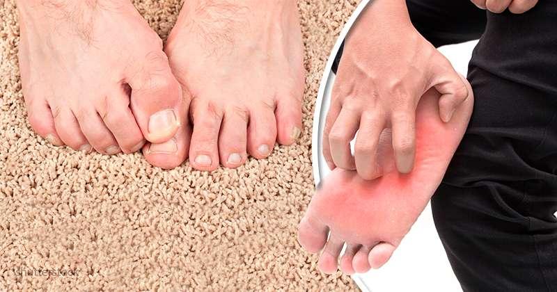 d mangeaison des pieds les principales causes et les techniques pour les soulager sur fabiosa. Black Bedroom Furniture Sets. Home Design Ideas