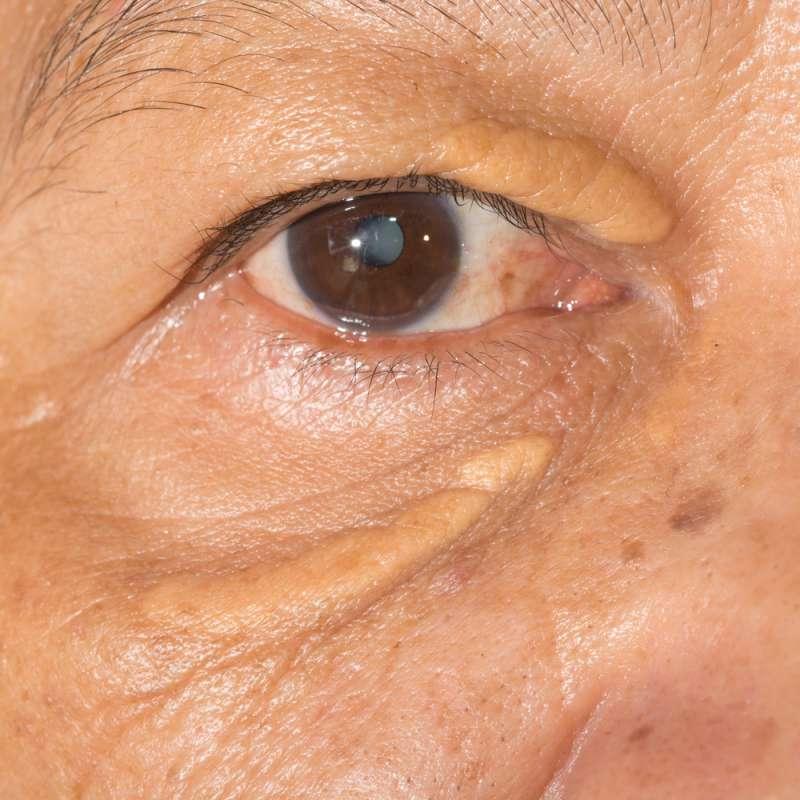 Ces plaques jaunes sur les yeux : que sont-elles et comment les soigner ?