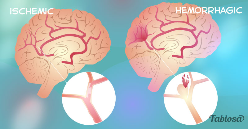 Cerebrovascular Disease  4 Main Types  And A Few Tips To Lower The Risk Of Developing It