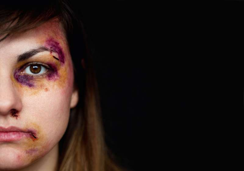 Domestic Violence Is A Horrible Issue, But There Are Different Solutions And Ways To Prevent ItDomestic Violence Is A Horrible Issue, But There Are Different Solutions And Ways To Prevent It