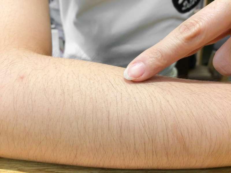 Волосы на руках: как с ними бороться и нужно ли?