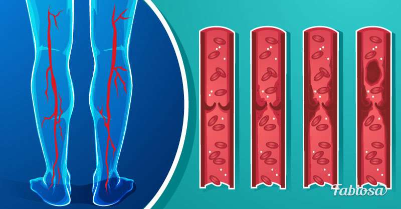 Thick Blood: Why It's Dangerous And How To Thin It