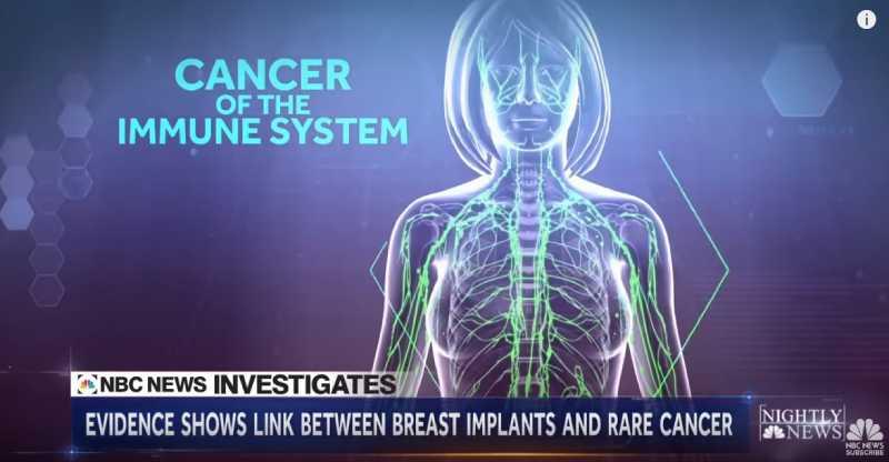 Грудные имплантаты считаются одним из факторов риска развития рака, но поражает он не молочные железы