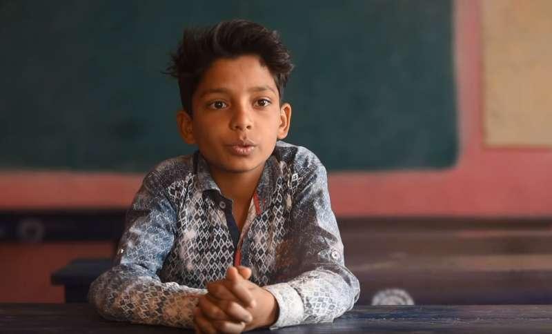 هذا الولد من سنوات 13 له وجه مغطى بالكامل بالفراء بسبب متلازمة نادرة