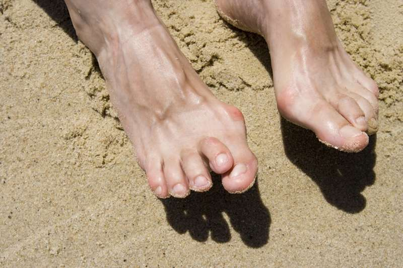 What Your Feet Say About Your Health And What Happens When You Ignore Them?
